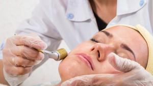 Dermaroller arcfiatalítás